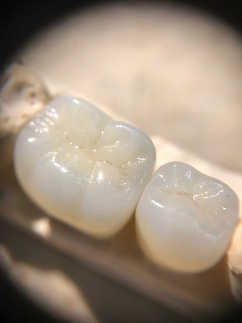 Pearlescent and life-like crowns for two teeth
